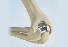 Total Elbow Arthroplasty